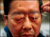 Image of acupuncture